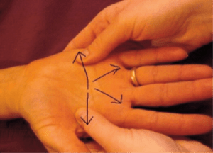 manual-edema-mobilization-mem