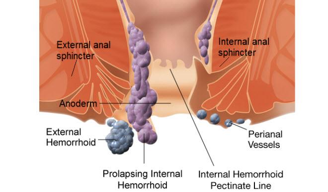 Ayurvedic Remedy for Piles   Ayurpedia