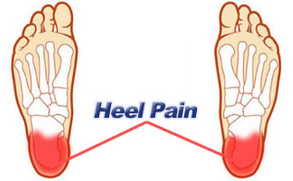 ayurvedic remedy for heel pain � remedy 2 ayurpedia
