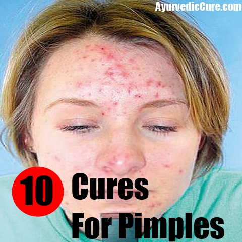 10 Natural Cures For Pimples