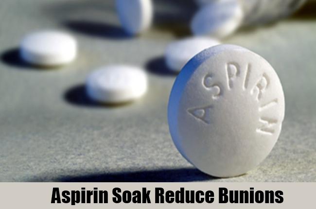Aspirin Soak Reduce Bunions