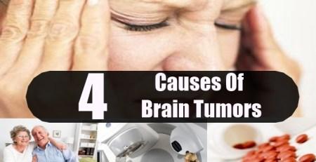 Causes Of Brain Tumors