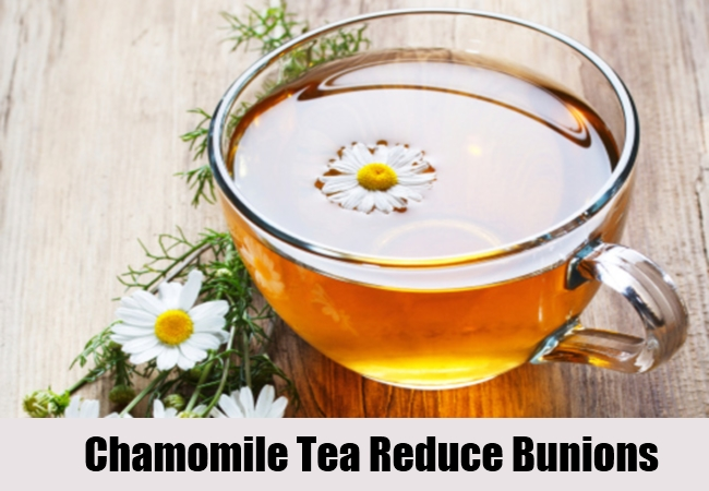 Chamomile Tea Reduce Bunions