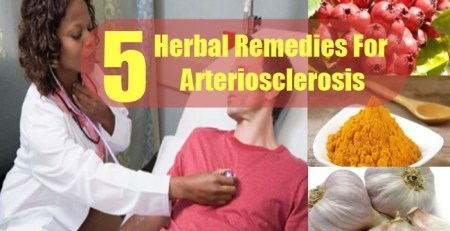 Herbal Remedies For Arteriosclerosis