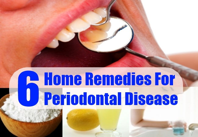 All Natural Remedies For Periodontal Disease