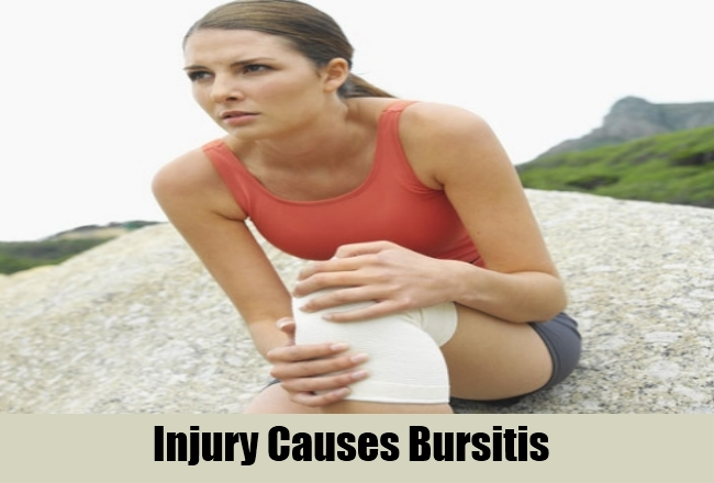 Injury Causes Bursitis