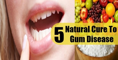 Natural Cure To Gum Disease