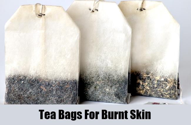 Tea Bags For Burnt Skin