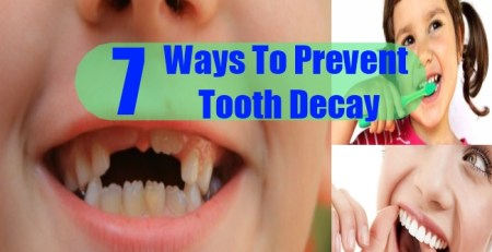Ways To Prevent Tooth Decay