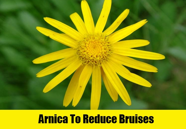 Arnica To Reduce Bruises
