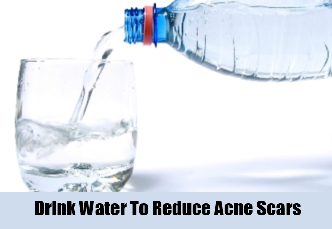 Drink Water To Reduce Acne Scars