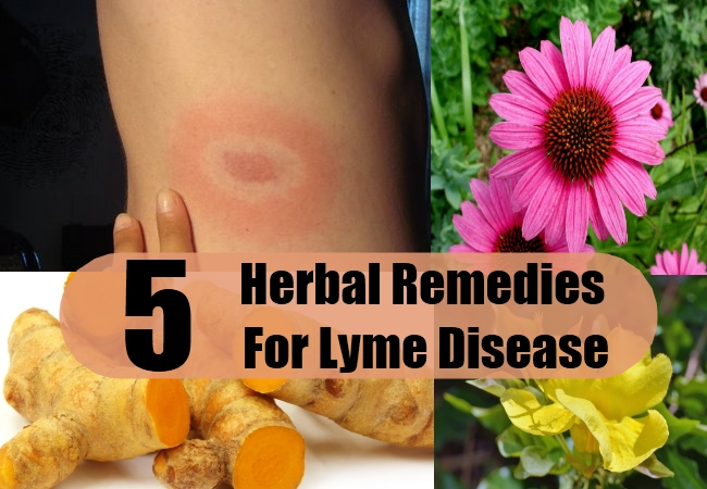 Herbal Remedies For Lyme Disease