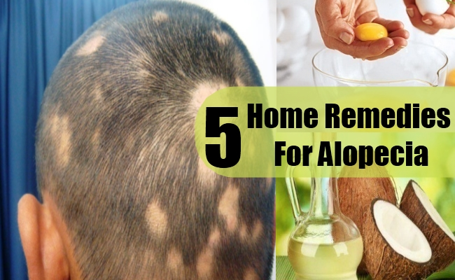 Top 5 Home Remedies For Alopecia