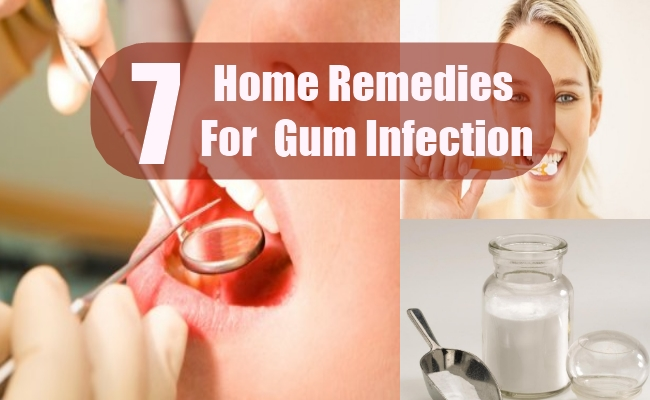 Home Remedies For Gum Infection