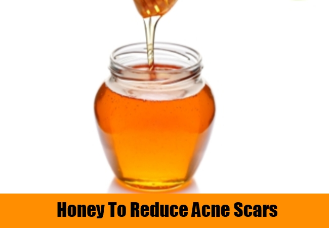 Honey To Reduce Acne Scars