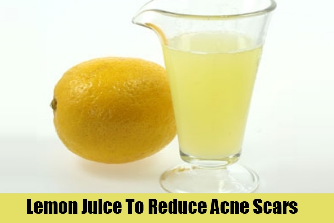 Lemon Juice To Reduce Acne Scars