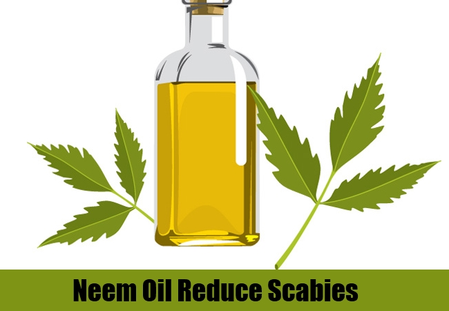 Neem Oil Reduce Scabies