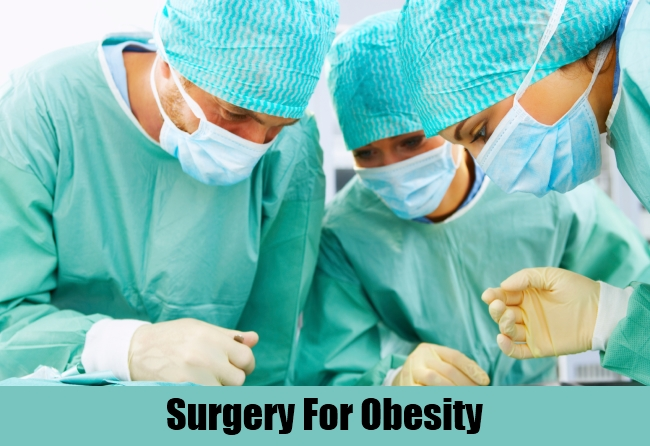 Surgery For Obesity