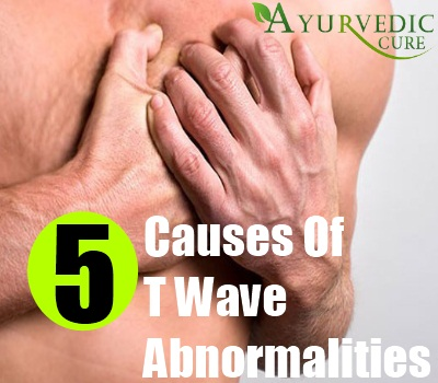 T Wave Abnormalities