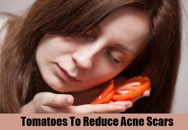 Tomatoes To Reduce Acne Scars