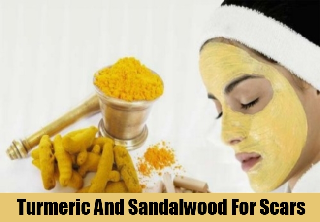 Turmeric And Sandalwood For Scars