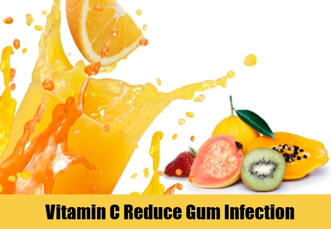 Vitamin C Reduce Gum Infection