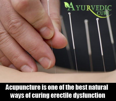 Chinese acupuncture for sexual problems