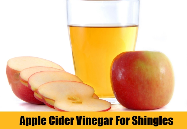 Apple Cider Vinegar For Shingles
