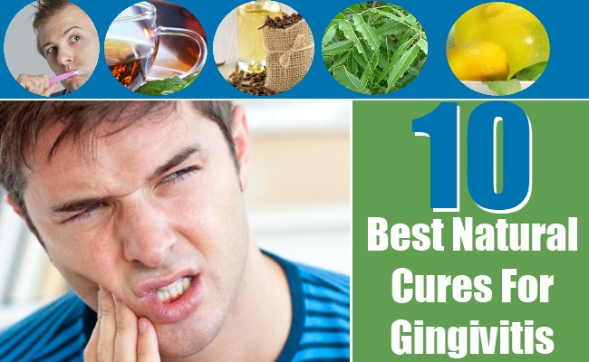 Best Natural Cures For Gingivitis
