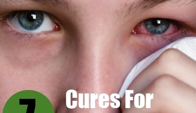 Cures For Eye Infection