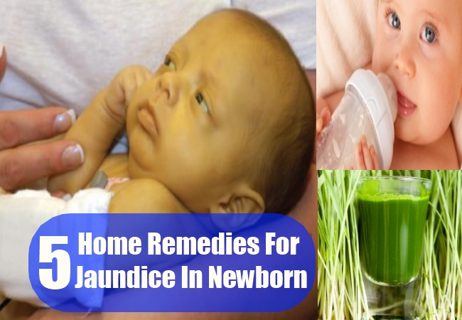 Home Remedies For Jaundice In Newborn