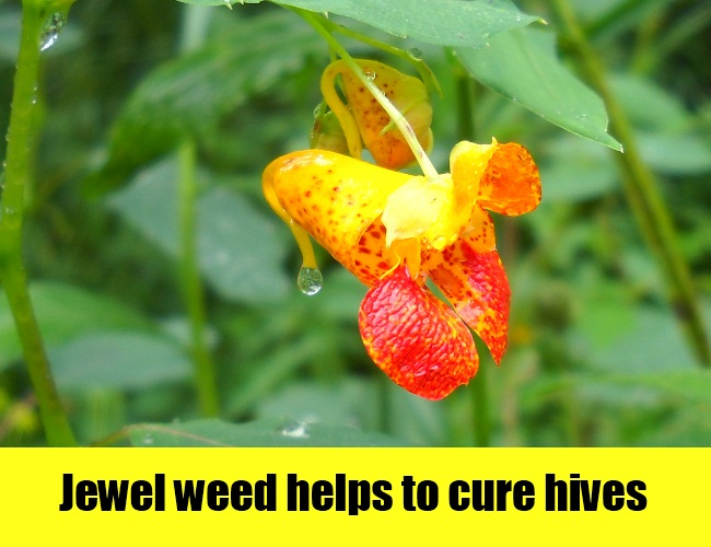 Jewel Weed Helps To Cure Hives