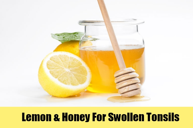 Lemon & Honey For Swollen Tonsils