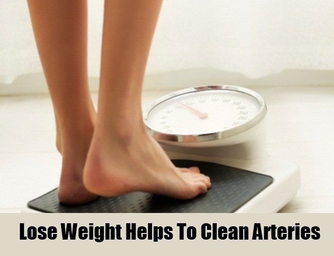 Lose Weight Helps To Clean Arteries