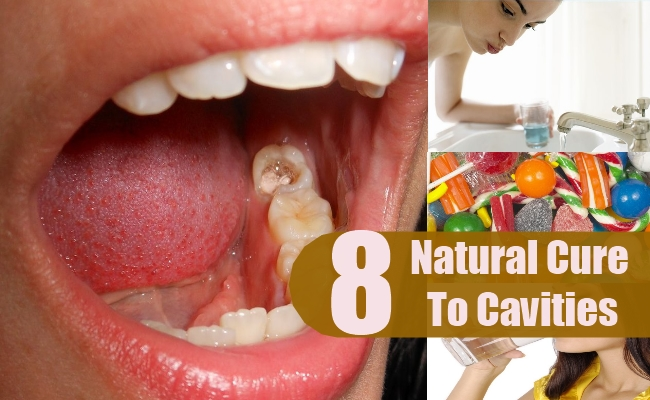 Natural Cure To Cavities
