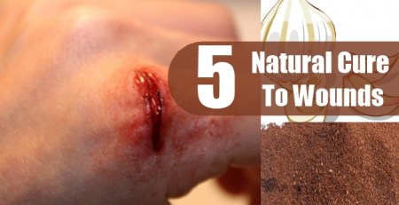 Natural Cure To Wounds