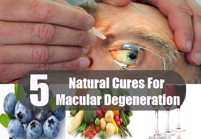 Natural Cures For Macular Degeneration