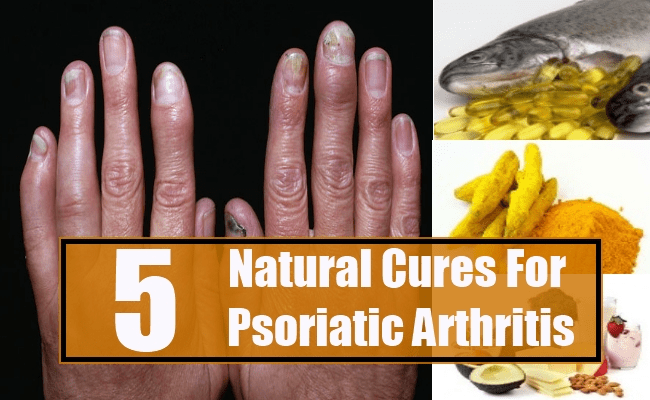 Natural Cures For Psoriatic Arthritis