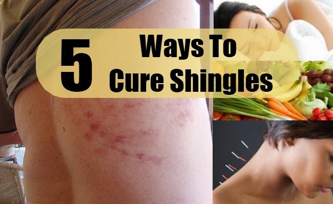 Ways To Cure Shingles