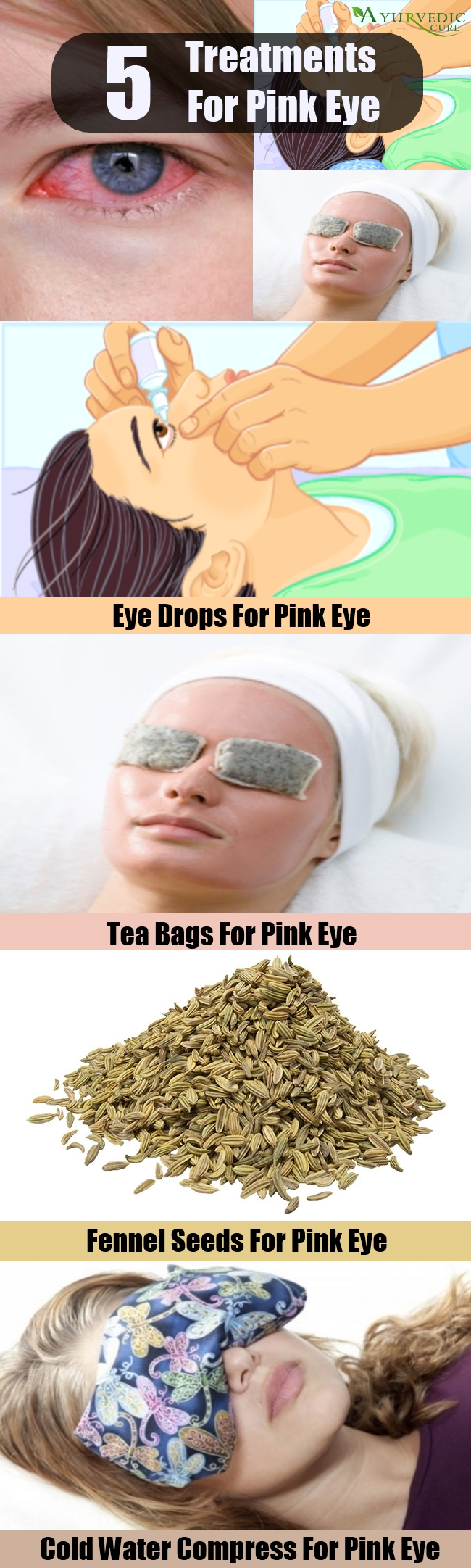 Different Treatments For Pink Eye  How To Treat Pink Eye. Colorado Vacation Packages Summer. Applied Science University Pa Review Course. Build A Ecommerce Website Free. Epoxy Flooring Companies Phoenix Solar Energy. Are Annuities A Good Investment For Retirement. Pc Repair Training Courses Sony India Serials. What Does The Pancreas Do In The Digestive System. Small Sports Cars For Sale Heart Lung Machine