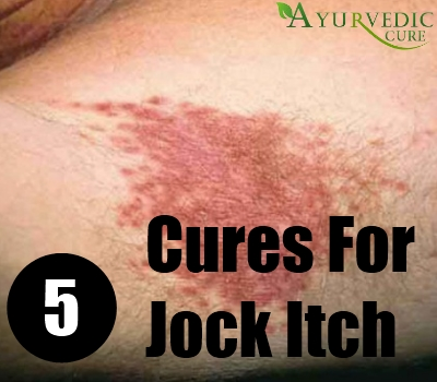 5 Effective Natural Cures For Jock Itch