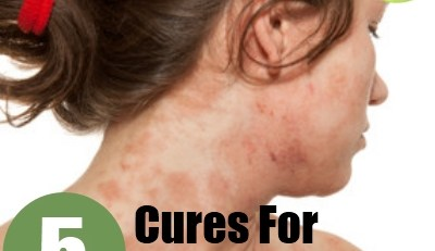 Cures For Eczema In Adults