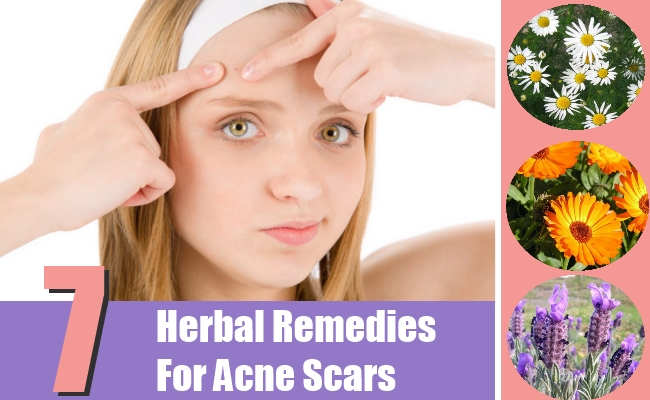 Herbal Remedies For Acne Scars