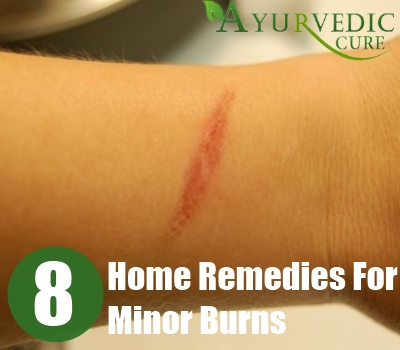 Home Remedies For Minor Burns