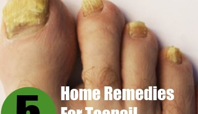Home Remedies For Toenail Fungus