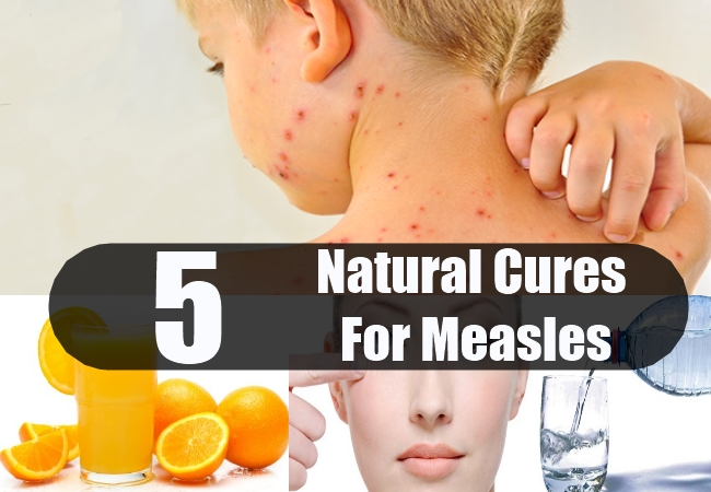 Natural Cures For Measles