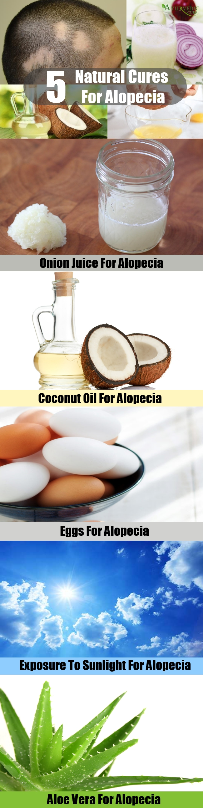 Top 5 Natural Cures For Alopecia