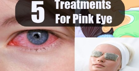 Treatments For Pink Eye