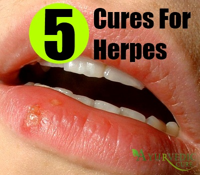 Can You Cure Stds Naturally