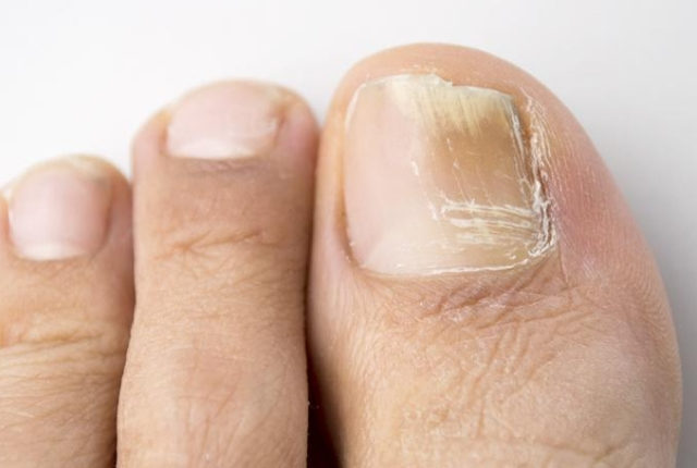 Reduces Toenail Infection